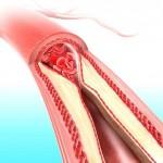 Кардиохирург разказа за истинските причини за сърдечно-съдовите заболявания