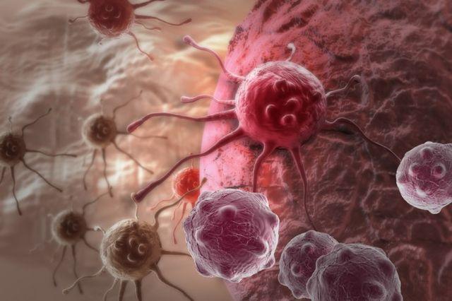 Британски лекар: Ракът е най-добрият начин да умреш