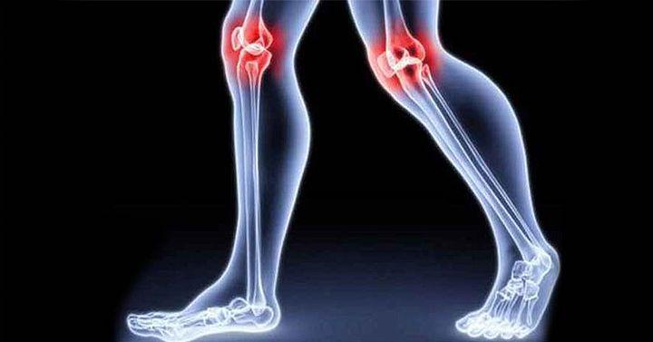 Невероятно ефективна народна рецепта, която ще възстанови коленете и ставите ви